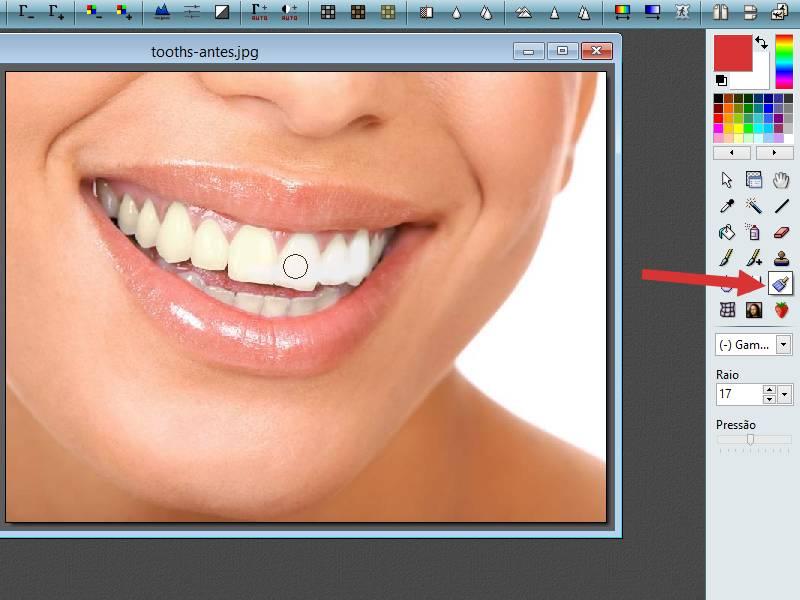 Como clarear dentes amarelos para brancos